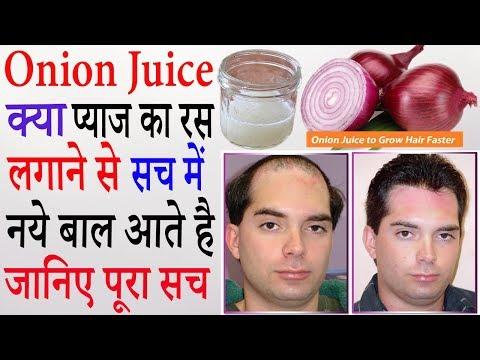Onion Juice For Hair Growth In Hindi | प्याज के रस से बाल उगाने के उपाय | Pyaj Ke Ras Ke Fayde