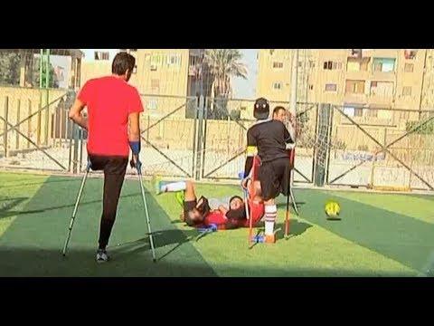 -فريق المعجزات-.. أول منتخب كرة لأصحاب القدم الواحدة فى مصر والشرق الأوسط - الليلة  - نشر قبل 11 ساعة