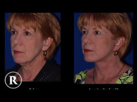 Dr. Robb Jr. Facelift Natural outcomes!