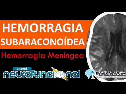 HEMORRAGIA SUBARACNOÍDEA (HSA) - Aula Completa - TCE #4