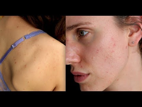 back acne dating