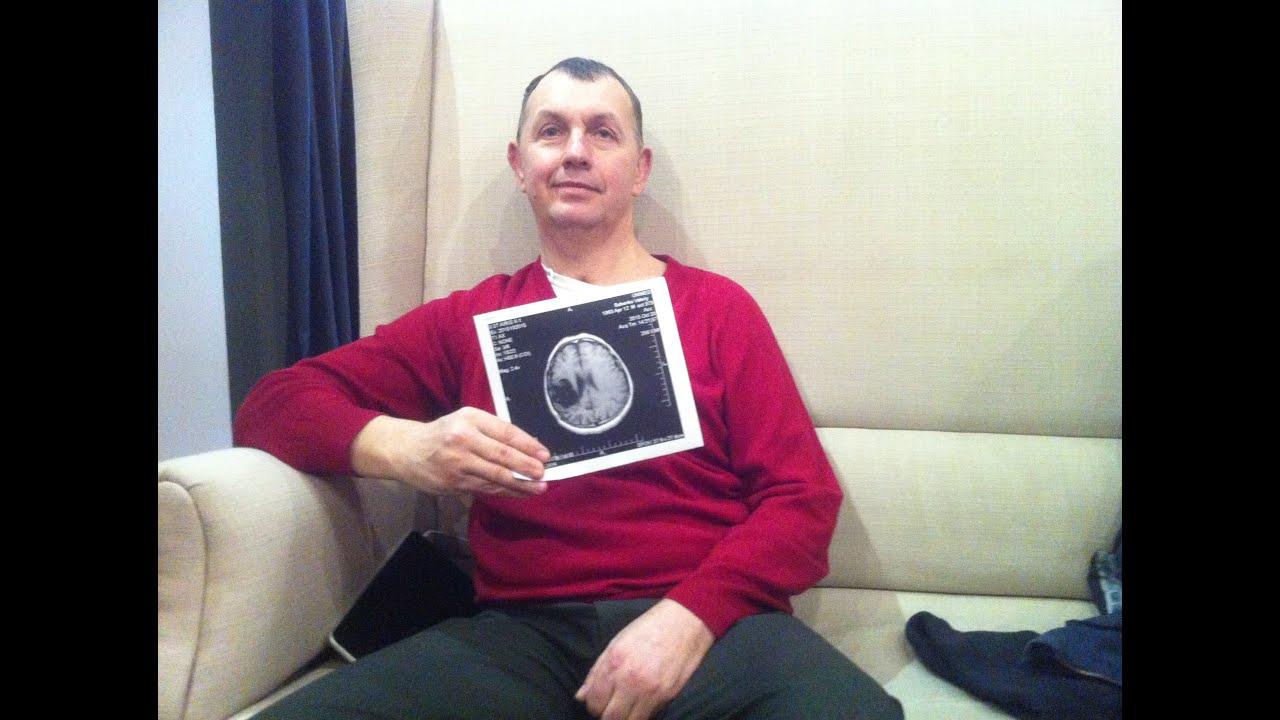 Восстановление после инсульта. Бесплатная консультация Валерия Бабенко