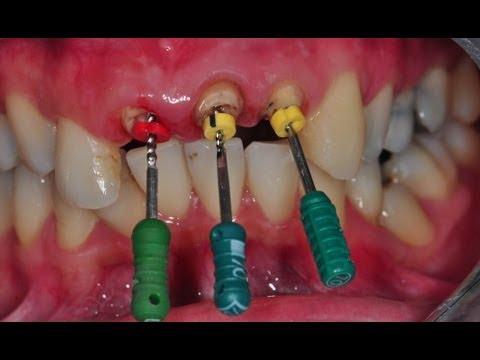รักษารากฟัน ตัวอย่างการรักษารากฟัน