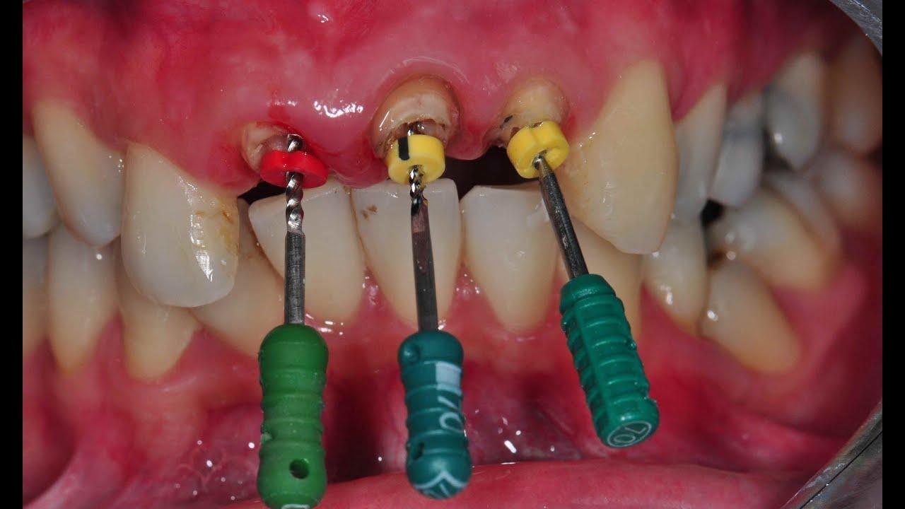 รักษารากฟัน ตัวอย่างการรักษารากฟัน Youtube