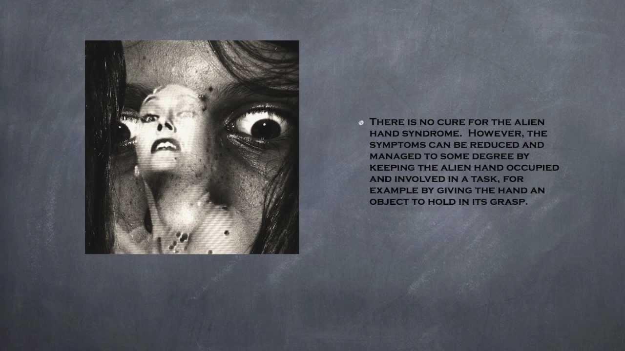 StunningFactsHD - Alien Hand Syndrome - YouTube