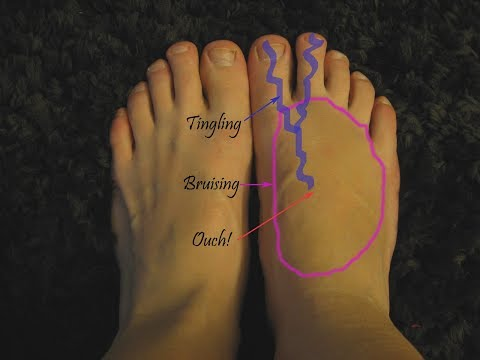 Top of the Foot Pain  *@ HOME Treatment*
