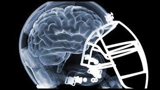 Can Marijuana Help Football Related Head Trauma?