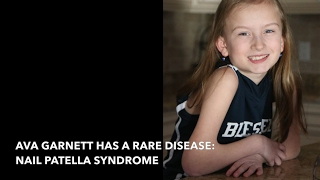 Young girl shares big message about rare diseases
