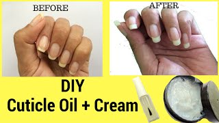 How to grow Nails Fast? DIY Cuticle Oil + Cream