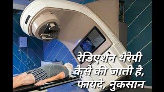 रेडिएशन थैरेपी कैसे की जाती है, फायदे, नुकसान - Radiotherapy