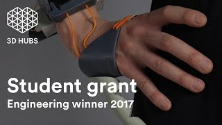The Third Thumb - 3D Hubs Student Grant Engineering Winner - 2017