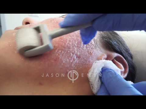hqdefault - Best Dermatologist Acne Scars Los Angeles