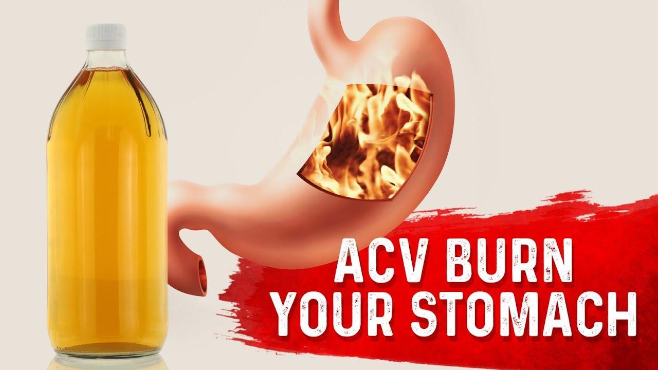 Does Apple Cider Vinegar Burn Your Stomach