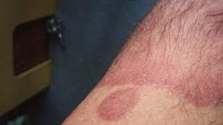 Psoriasis Eczema Sucks Why Skin Conditions Suck #22