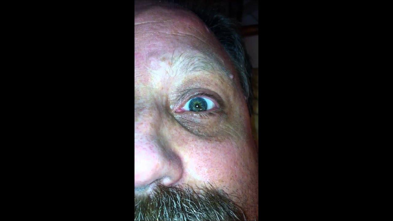 BPPV Eye Twitch