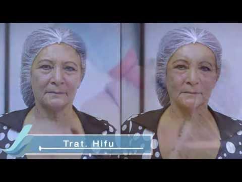 HIFU: Lifting Facial - Tratamiento Tensor - Rejuvenecimiento Facial