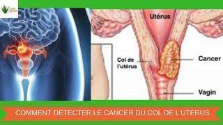 10 Symptômes Qui Peuvent Indiquer Un Cancer Du Col De L'Utérus | Nature Sante