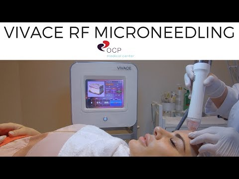 VIVACE RF MICRONEEDLING TREATMENT - OCP MEDICAL CENTER DUBAI