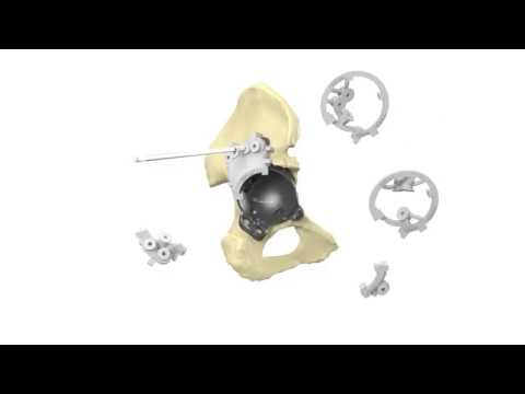 Patient-Specific 3D-Printed aMace Hip Implant | Acetabular Revision System | Materialise Medical