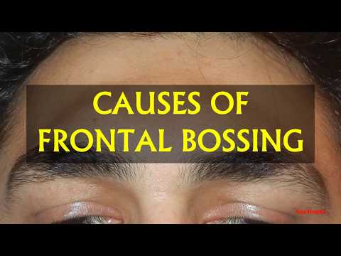 CAUSES OF FRONTAL BOSSING