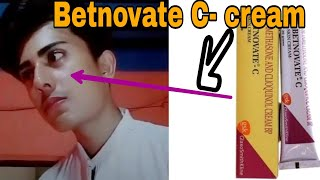 How to use Betnovate C cream review in hindi /ues /Benefits & Side effects |