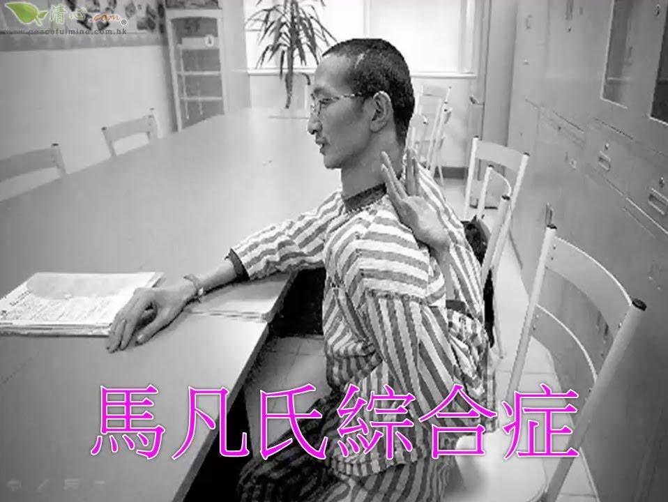 馬凡氏綜合癥 - YouTube