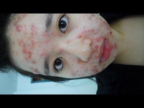 my-acne-story---birth-control-pills-(for-accutane)