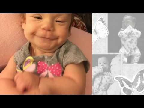 Isabella Faith Turner Syndrome Miracle