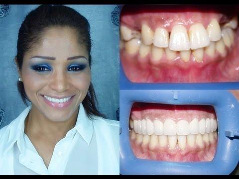 Le secret de mes dents.......