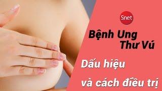 Bệnh ung thư vú: Dấu hiệu và cách kiểm tra