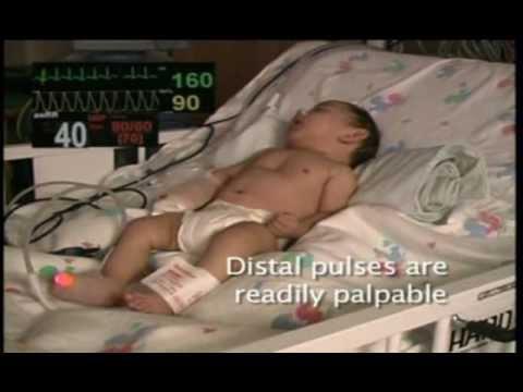 PALS Pediatric Core Case 01