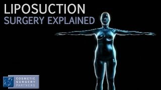 Liposuction explained - Cosmetic Surgery video animation