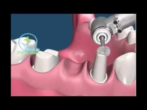 Dental Bridge Procedure Step by Step