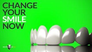 The Future of Dental Veneers is Here! BilVeneers™ by Brighter Image Lab!