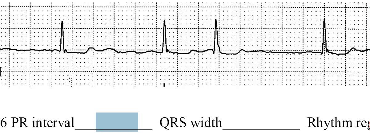 Chapter 1-2 Sinus Rhythms, Strip 6 (in class practice)