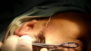 Serdev Suture Mid-face Lift During Course