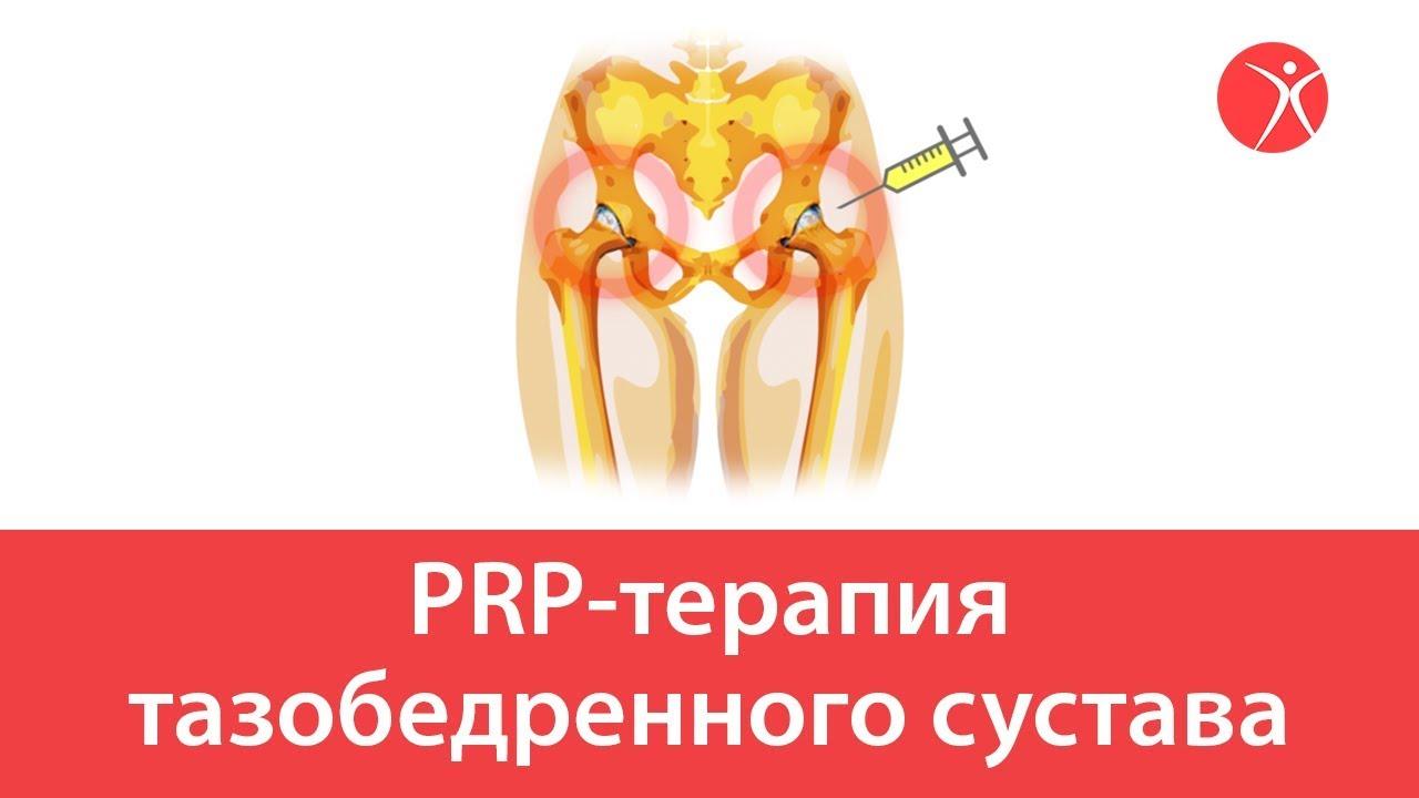 PRP-терапия тазобедренного сустава. Видео