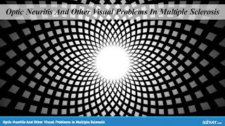 Optic Neuritis And Other Visual Problems In Multiple Sclerosis