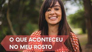 O QUE ACONTECEU NO MEU ROSTO | Loving My Dots