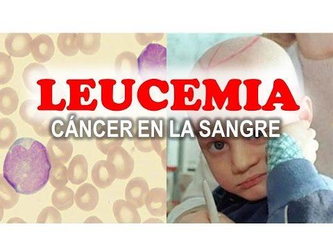 La Leucemia - Causas, Síntomas y Tratamiento - YouTube