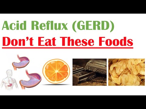 Worst Foods to Eat with Acid Reflux (GERD, Gastroesophageal Reflux Disease) | How to Reduce Symptoms
