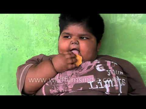 Indian man decides to sell his kidney to save his obese children