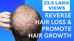 5 Easy Ways To Reverse Hair Loss & Promote Hair Growth