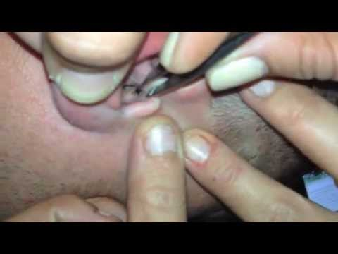 Bug Buried in Guy's Ear