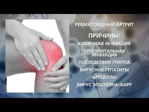 Реактивный артрит — Википедия