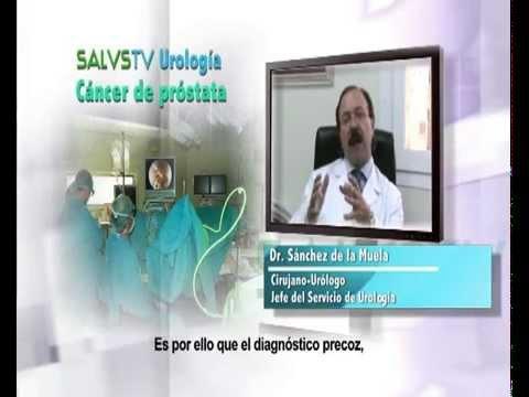 Dr. Sanchez de la Muela - Carcinoma  de próstata