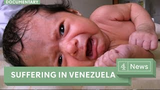 Venezuela hospitals struggle to deliver basic services
