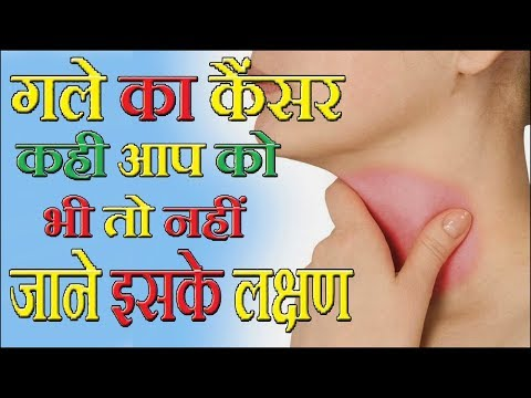 गले कैंसर के लक्षण,इन्हें बिल्कुल भी नजरअंदाज ना करें // Symptoms of throat cancer