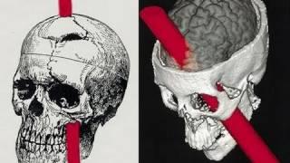 Brain Mind Lecture 3 Frontal Lobes: Lobotomy Catatonia Mania