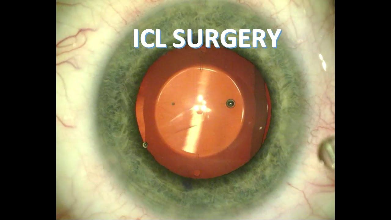 Szemészeti retinol aktív - Immunológia és allergológia